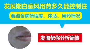白癜风早期症状图片
