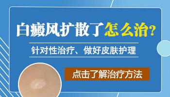 白癜风症状治疗